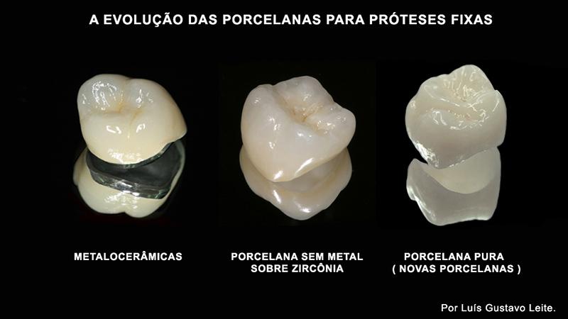 proteses-dentarias-fixas-com-porcelana-pura