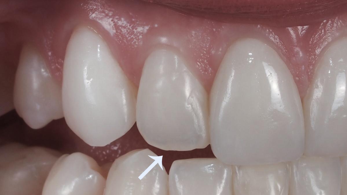 51ffdf600ac88 Lente de contato dental. Guia com dicas e informações essenciais.
