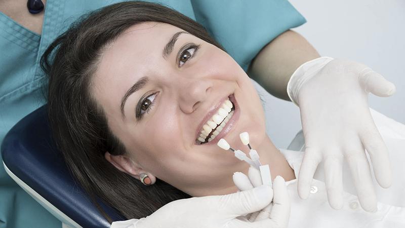 Lente de contato dental capa #5