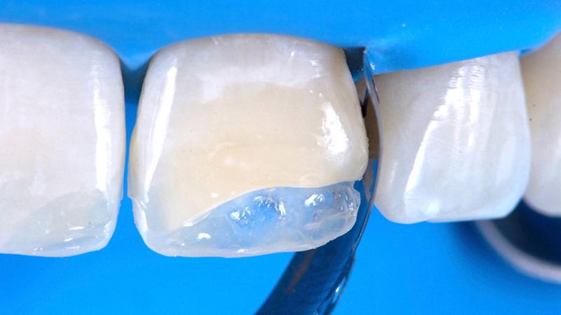 Faceta em resina ou porcelana qual é mehor dente quebrado