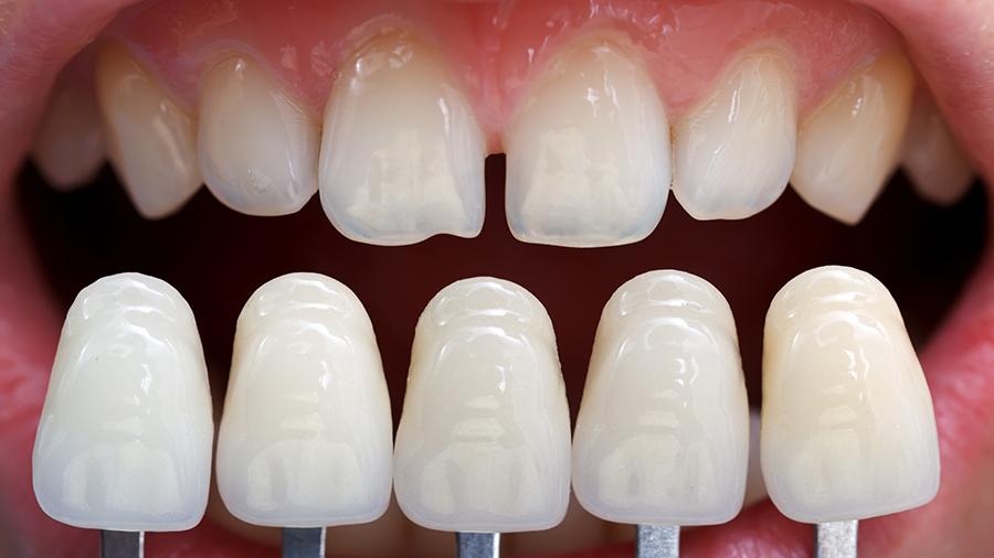Lentes de contato dental problemas capa