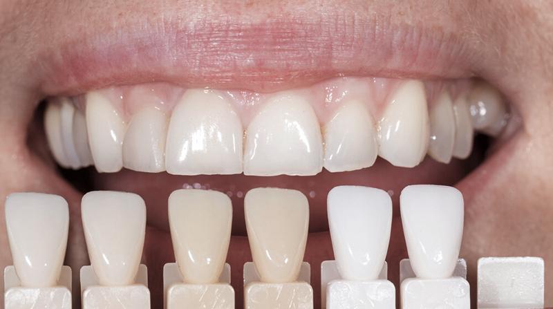 facetas e lentes de contato dental passo a passo seleção de cor