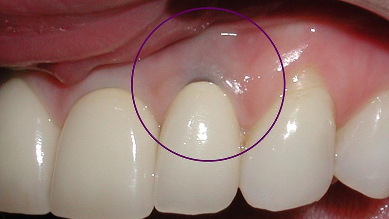 prótese dentária em porcelana tipos gengiva