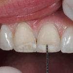 Lentes de contato dental podem apresentar problemas pós tratamento.