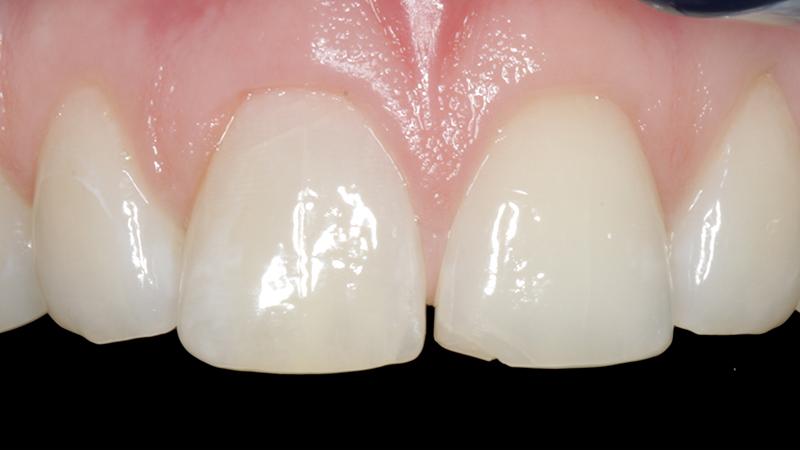 problemas com lentes de contato dental #5