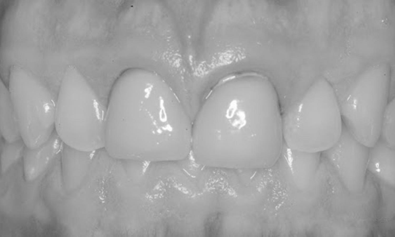 protese dentaria em porcelana pura problemas