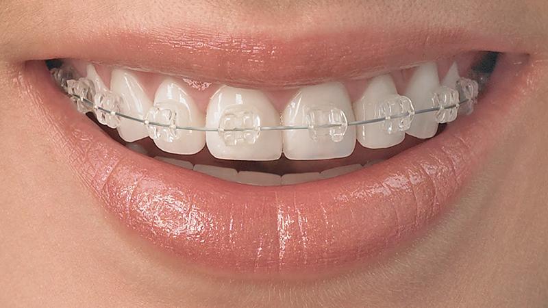 tratamento dente torto e girado com facetas e laminas aparelho