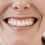 Tratamento realinha dentes tortos e inclinados com facetas e lâminas.