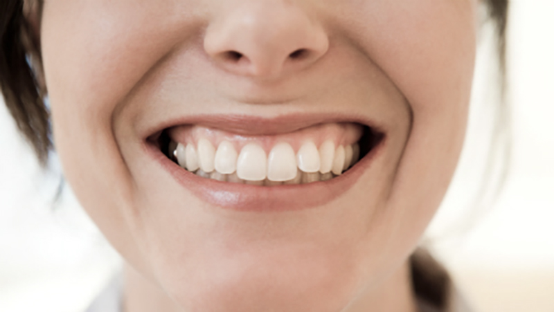 tratamento dente torto e girado com facetas e laminas capa