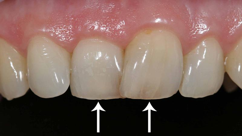 tratamento dente torto e girado com facetas e laminas facetas anteriores