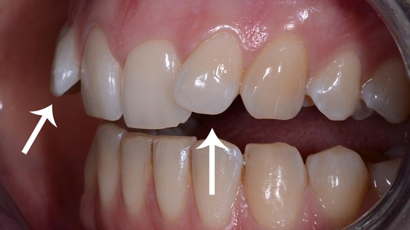 tratamento dente torto e girado com facetas e laminas inclinação excessiva