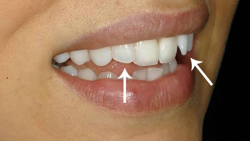 tratamento dente torto e girado com facetas e laminas inclinação ideal