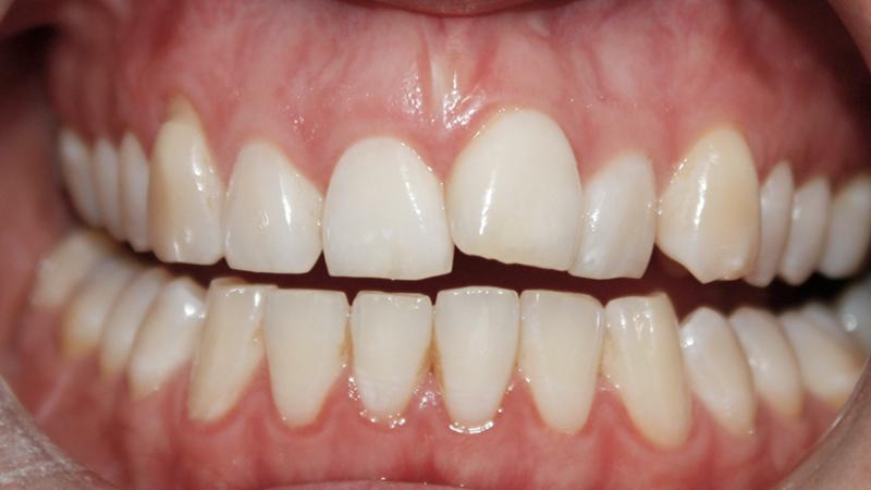 tratamento dente torto e girado com facetas e laminas multiplos