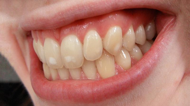 dentes amarelados e facetas capa