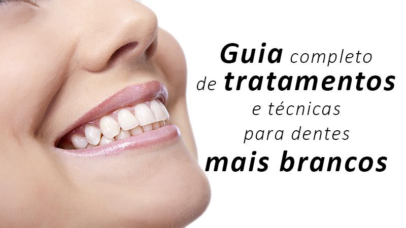 Dentes brancos e tratamentos com facetas e lentes