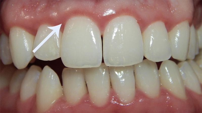 facetas-dentarias-sangramento-gengival