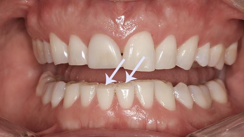 bruxismo-e-lentes-de-contato-dental-polpa