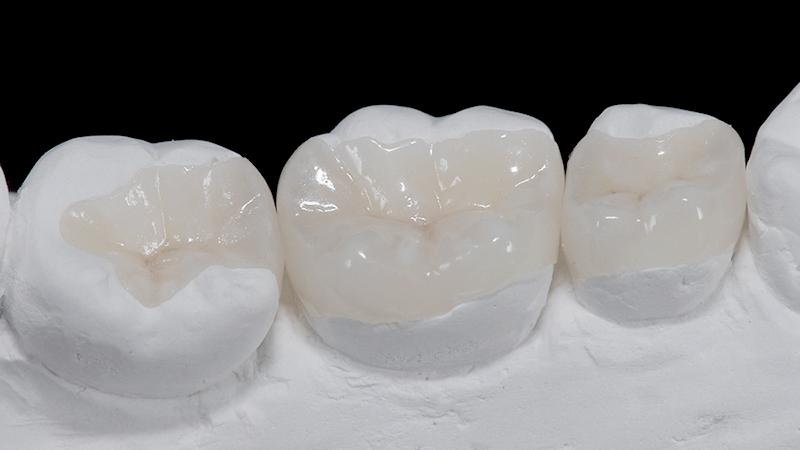 bruxismo-e-lentes-de-contato-dental-restauracao