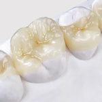 Restauração dentária com porcelana é mais durável e estética.