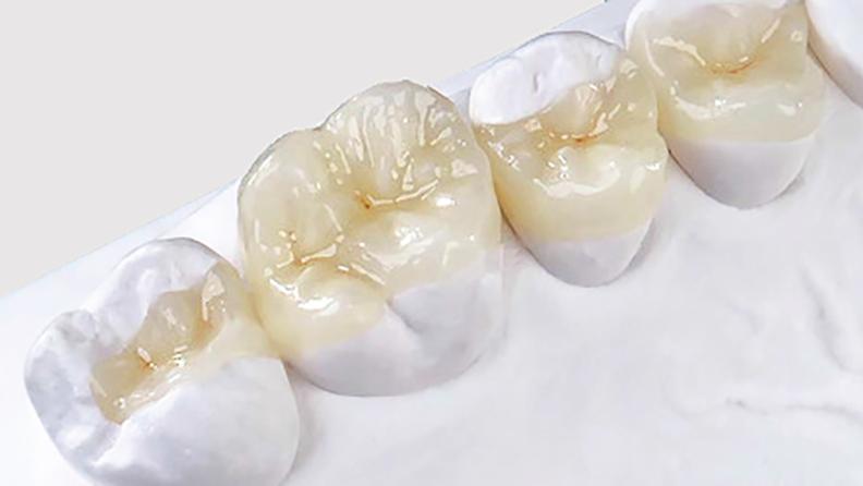 restauracao-dental-em-porcelana-blog