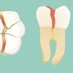 Raiz dentária fraturada tem tratamentos específicos e precisos.