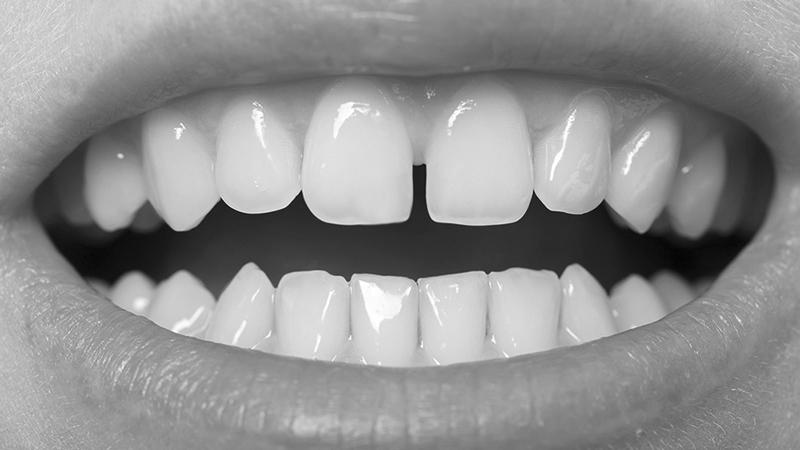 Facetas em resina: fechamento de espaços entre os dentes são indicações clássicas da técnica.