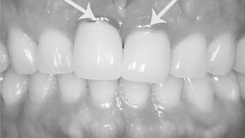 alergia-a-próteses-dentárias-inflamação