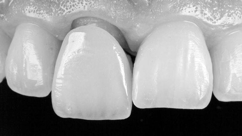 coroa dentária em porcelana