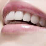 Cirurgia plástica gengival. Deleite em tratamento odontológico.