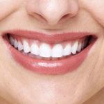 Gengiva escura e acinzentada associada à prótese dentária tem tratamento específico.