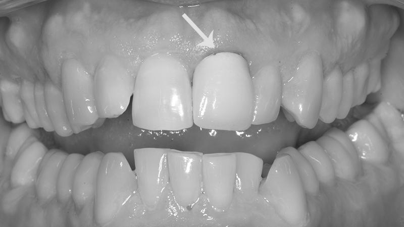 gengiva escura e cinza por prótese dentária com metal