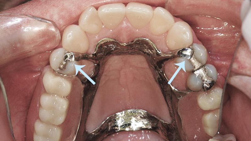 ponte móvel e implante dentário grampos problemas