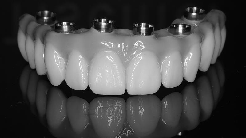 dentadura fixa protocolo em porcelana