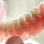 Dentaduras. Novos tratamentos e dicas para uma vida mais saudável.