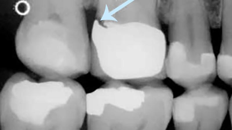 sangramento gengival e prótese dentária infiltração