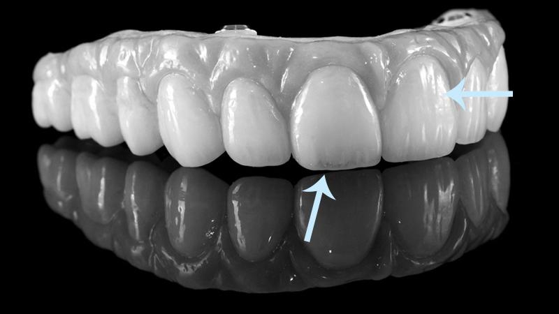 tratamento dentadura implantes porcelana