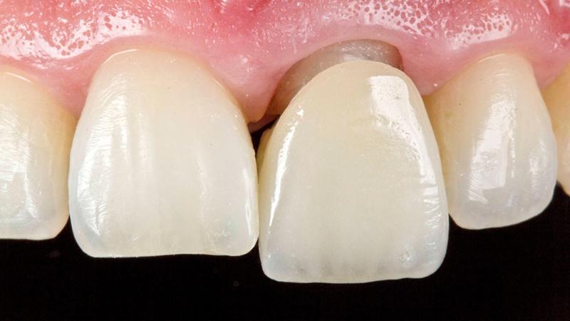 bruxismo e prótese dentárai em porcelana post