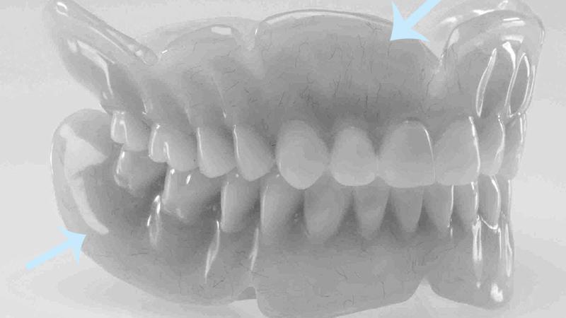 dificuldade de adaptação à dentadura bordas