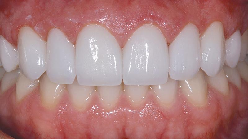 Secure Smile Cosmetic Fake Teeth Buy Cosmetic Teeth Pictures of temporary teeth