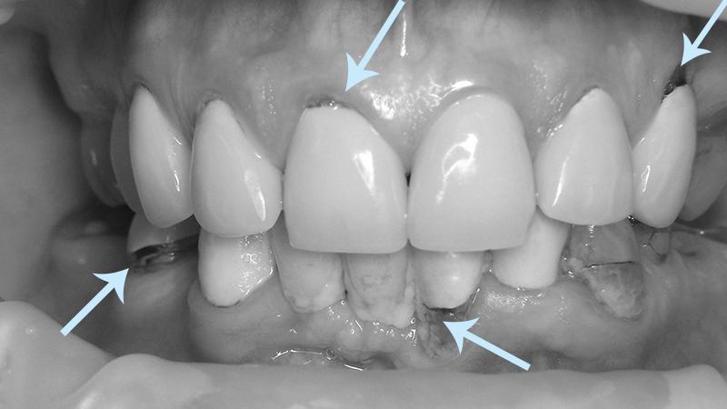 gengiva inflamada e dor prótese dentária multipla