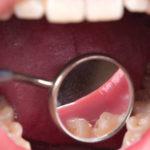 Gengiva inchada e inflamada em próteses dentárias fixas. O que fazer?