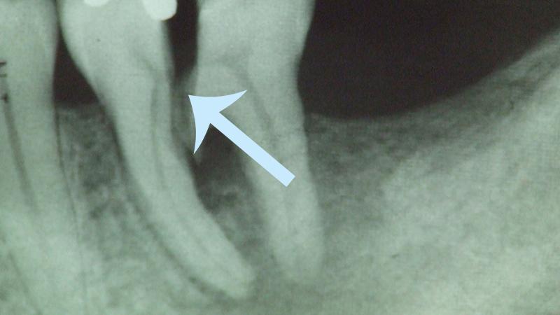 raiz dentaria fraturada e quebrada em prótese dentárias raio x