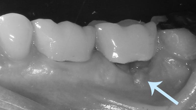 raiz fraturada e protese dentaria