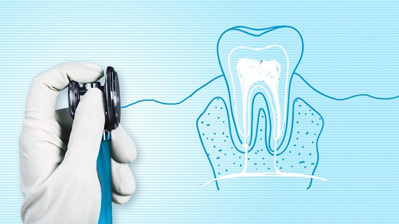 tratamento de canal e prótese dentária