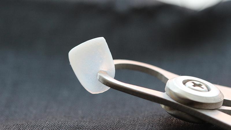 faceta em porcelana durabilidade espessura