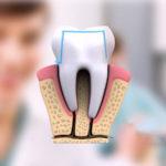Jaqueta em porcelana tem tipos específicos para dentes mais estéticos.
