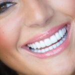 Lente de contato dental não é a única técnica utilizada por famosos.