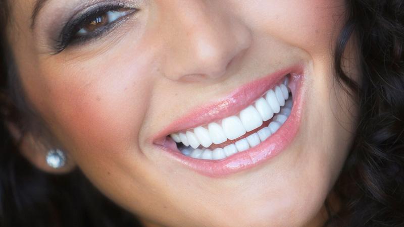 lente de contato dental famosos post