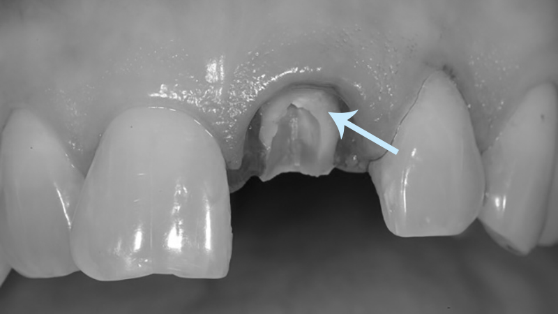 pino odontológico dente quebrado ou fraturado