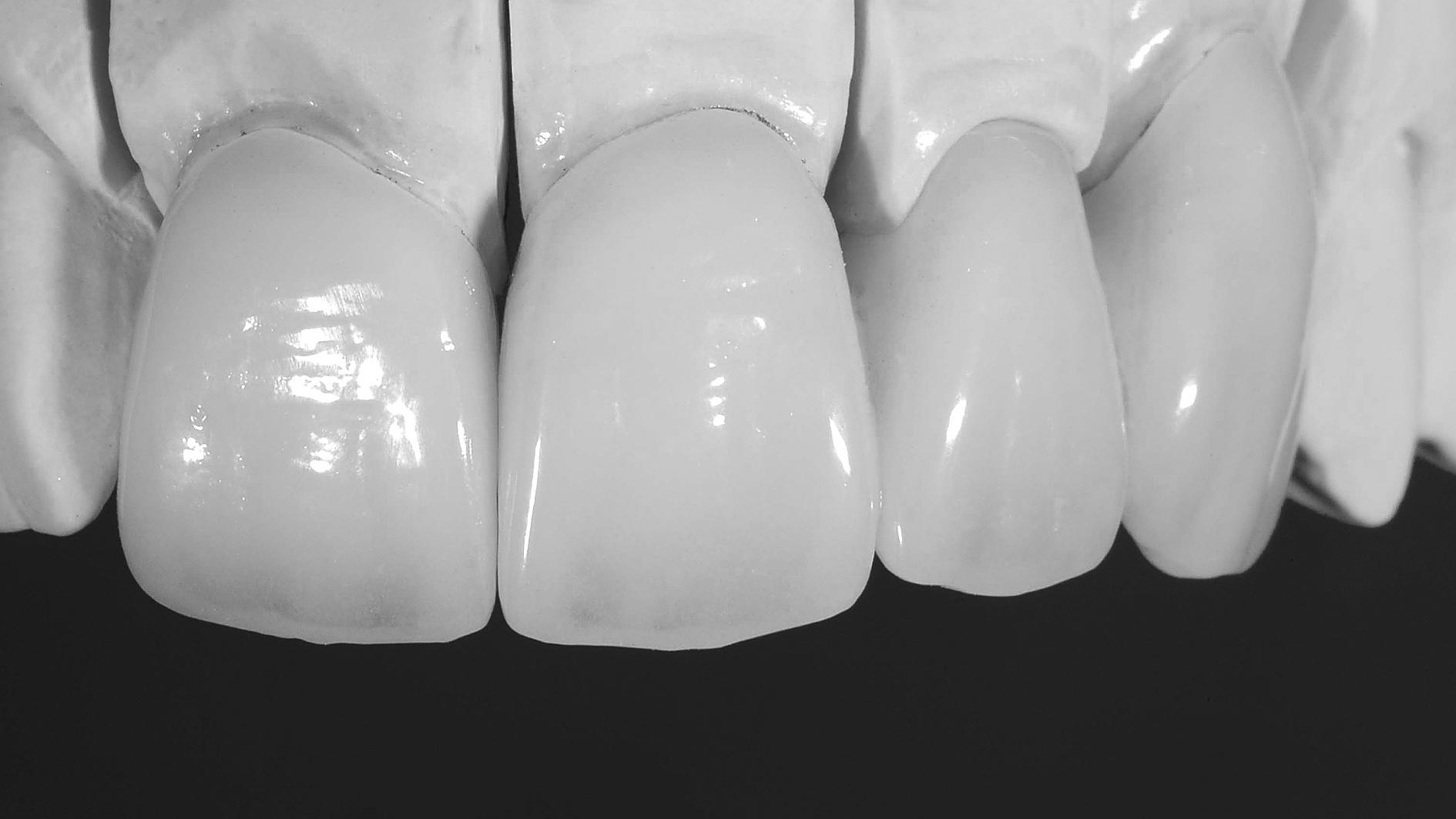 prótese dentária em zircônia detalhamento